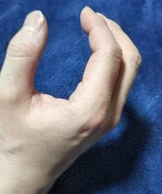 手の腱鞘炎(ばね指)の治療法!悪化するとどうなるの?自分で治せるの?